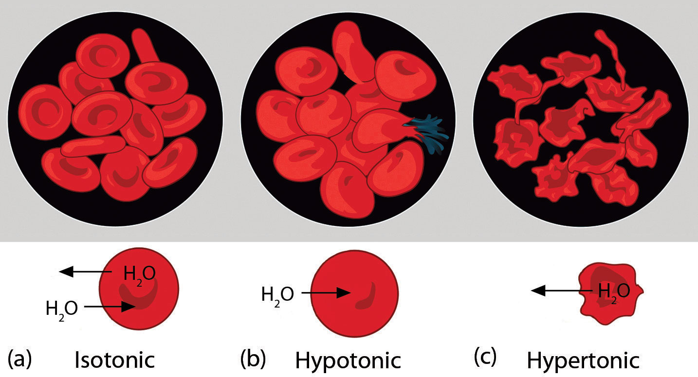 Diagram of normal red blood cells, red blood cells exposed to a hypotonic solution and to a hypertonic solution.