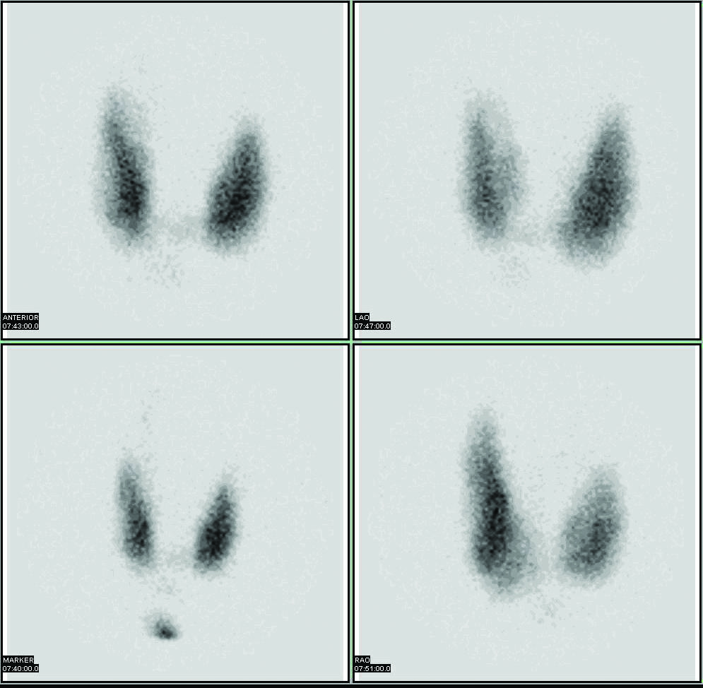 Images of the thyroid gland made with radioactive iodine.
